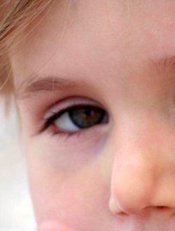Отеки, мешки под глазами у ребенка