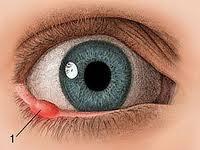Ячмень на глазу у ребенка симптомы